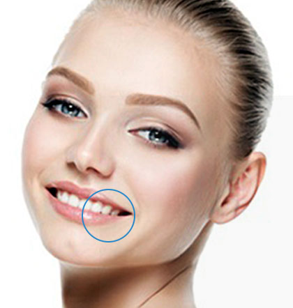 Les lèvres et les commissures labiales
