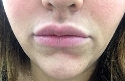 After-Injection d'acide hyaluronique dans les lèvres