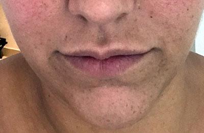 Before-Injection d'acide hyaluronique dans les lèvres