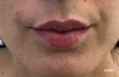 Before-Repulper les lèvres
