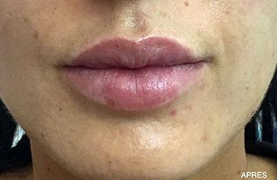 After-Repulper les lèvres