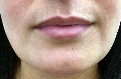 Before-Rehydratation des lèvres