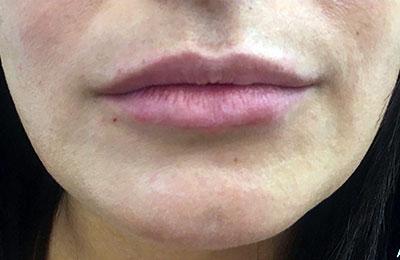 After-Rehydratation des lèvres