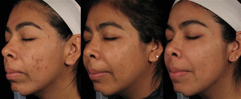 Nettoyage de paeu Perfect Skin à Paris - Dr Cheriet