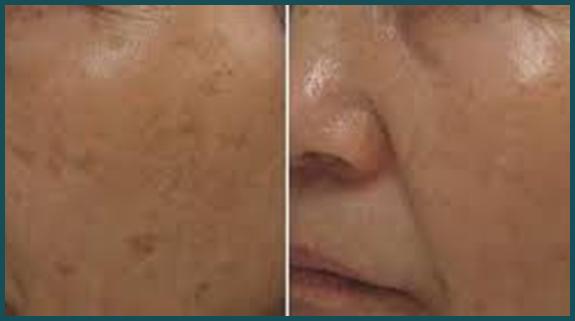 Nettoyage de peau Perfect Skin à Paris - Dr Cheriet