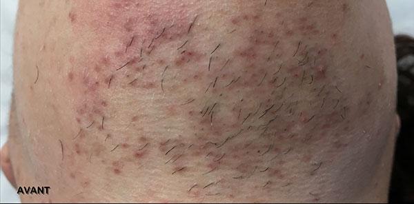Before-Traitement de taches Post inflammatoire: 1 mois après la première séance