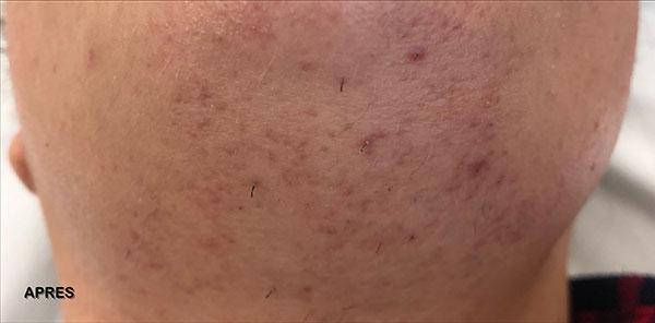 After-Traitement de taches Post inflammatoire: 1 mois après la première séance