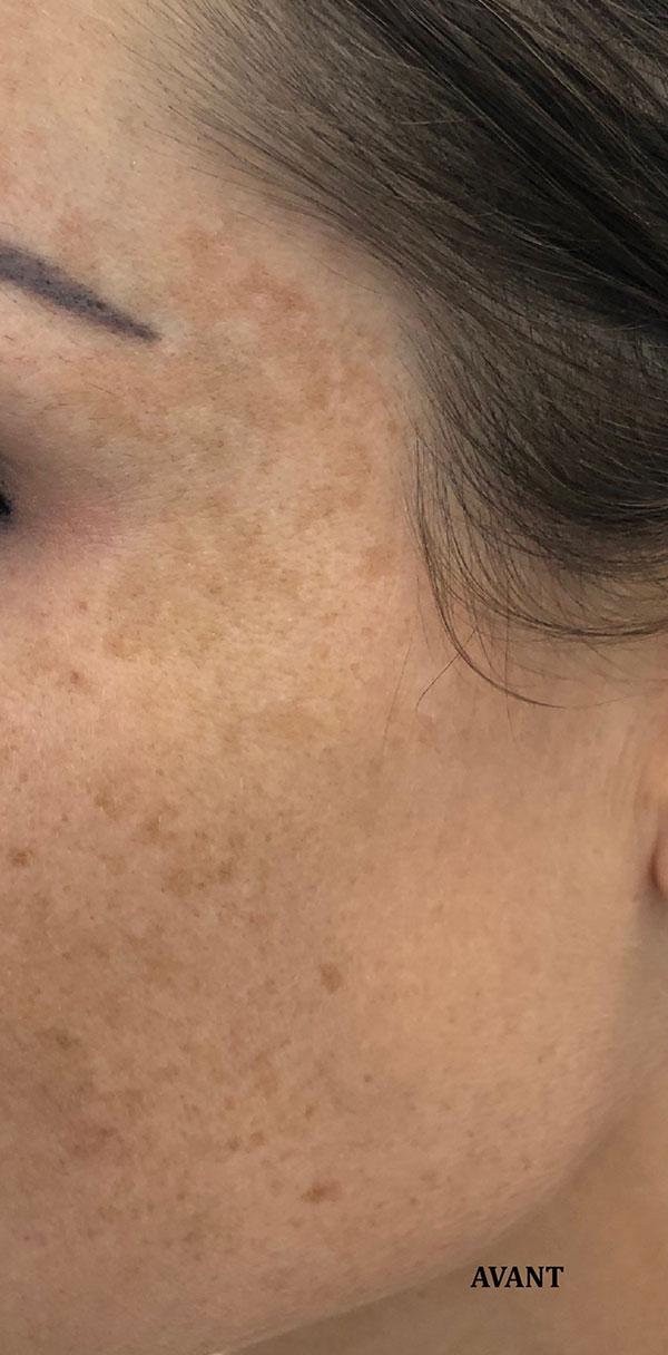 """Before-Traitement de taches brune """" taches de soleil"""": résultat a 1 mois après la première séance"""