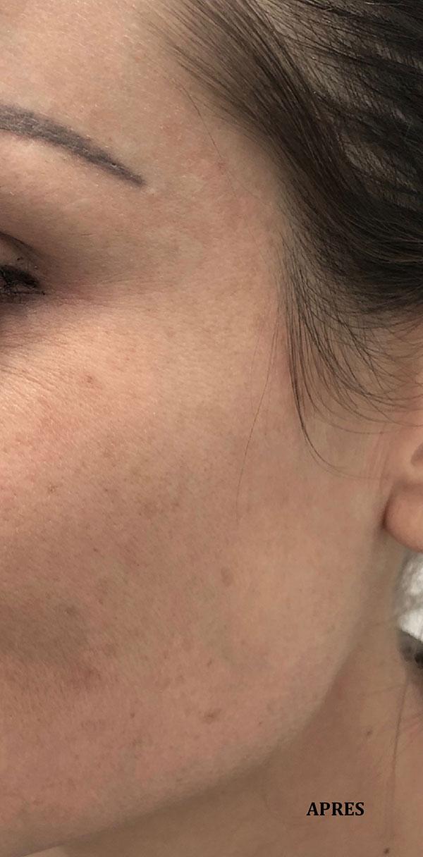 """After-Traitement de taches brune """" taches de soleil"""": résultat a 1 mois après la première séance"""